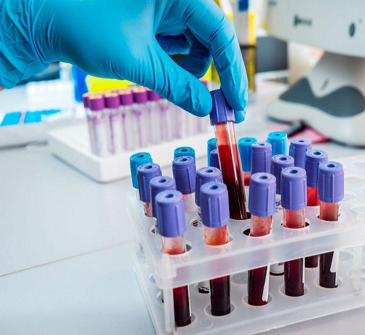 Nuovo_test_sangue_scova_8_tumori